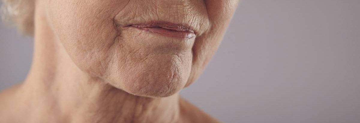 vieille peau